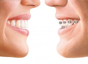 invisalign product photo 1